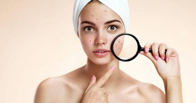 Акне-патчи: попрощайтесь с проблемами кожи